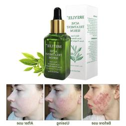 Acne Treatment Serum Facial Essence Anti Acne Scar Removal C