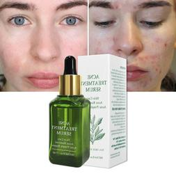 Facial Acne Treatment Serum Essence Face Scar Pimple Removal