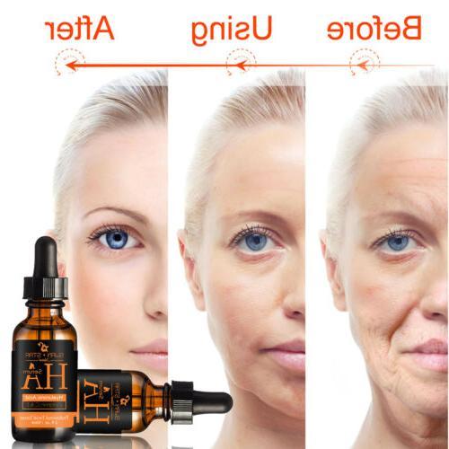 100% Acid Facial Aging Wrinkle Star
