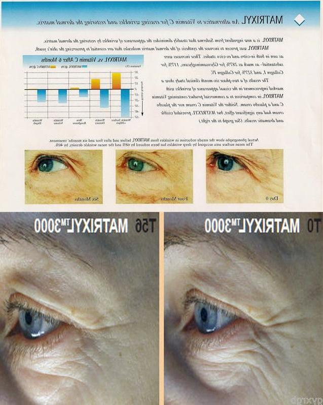 4 BULK -HYALURONIC ACID 3000 ~FACIAL