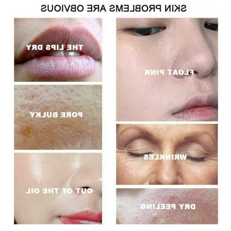 60ML Pores Pore Tightens Whitening Essence