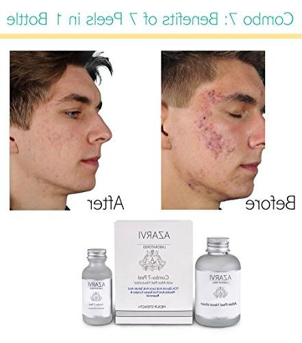 Combo After Peel Neutralizer. with TCA, Mandelic, Strong Peel Acne, Skin