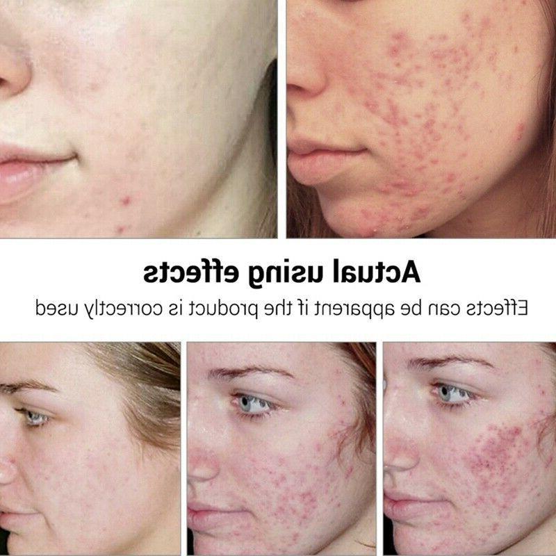 BREYLEE Facial Essence Acne Scar Removal