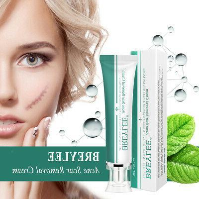 Advanced Scar Gel Cream Serum Face Repair Marks