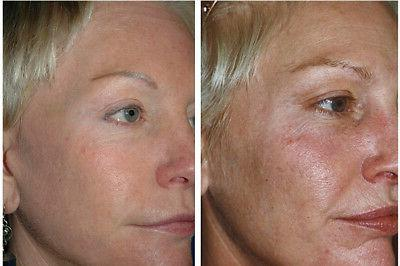antiaging skincare kit for aging skin cleanser