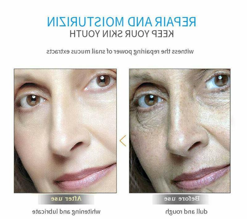 Hyaluronic Gel Anti-Aging Wrinkle Eye Skin