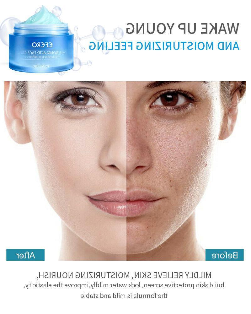 Hyaluronic Acid Gel Anti-Aging Eye