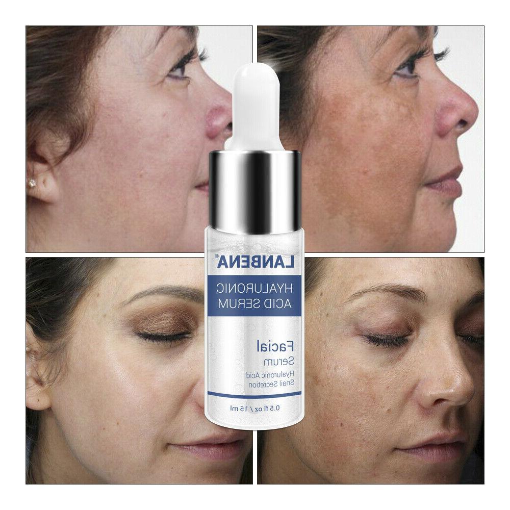 Hyaluronic Acid Serum Essence Whitening Anti-aging
