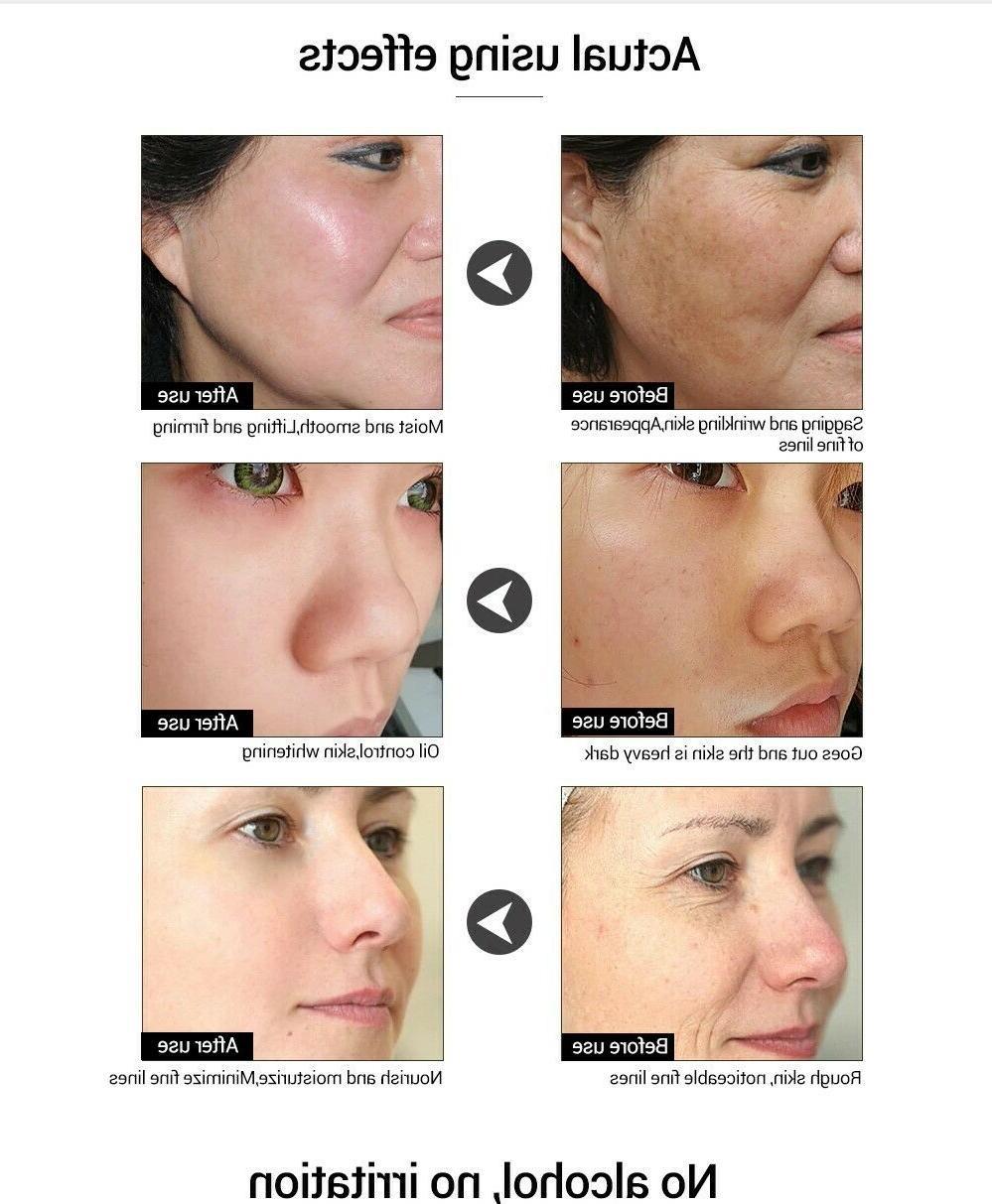 Hyaluronic Serum Essence Pore Whitening