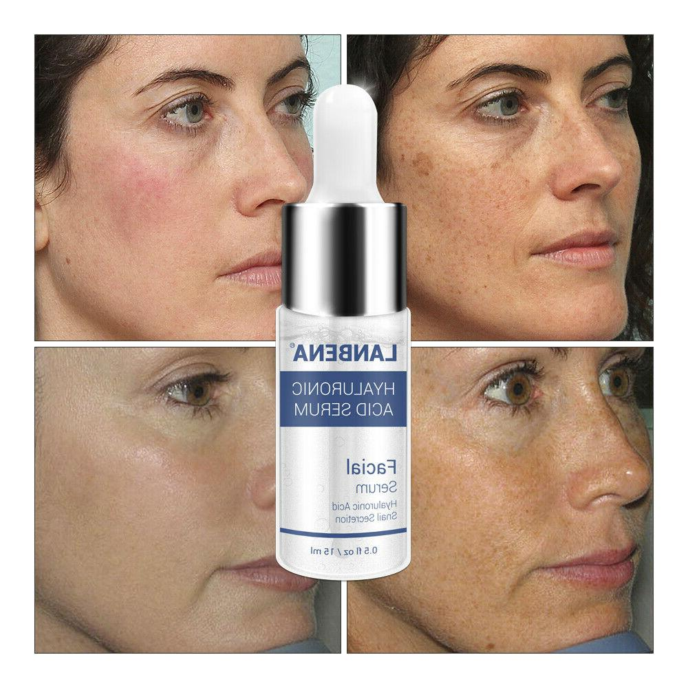 Hyaluronic Essence Whitening Anti-aging