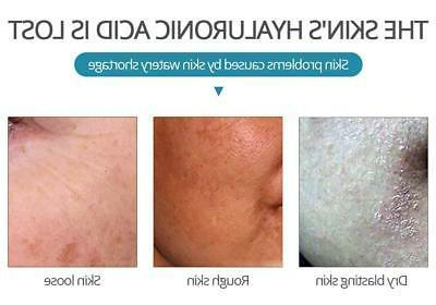 Hyaluronic Acid Moisturizing Essence Shrink skin Care