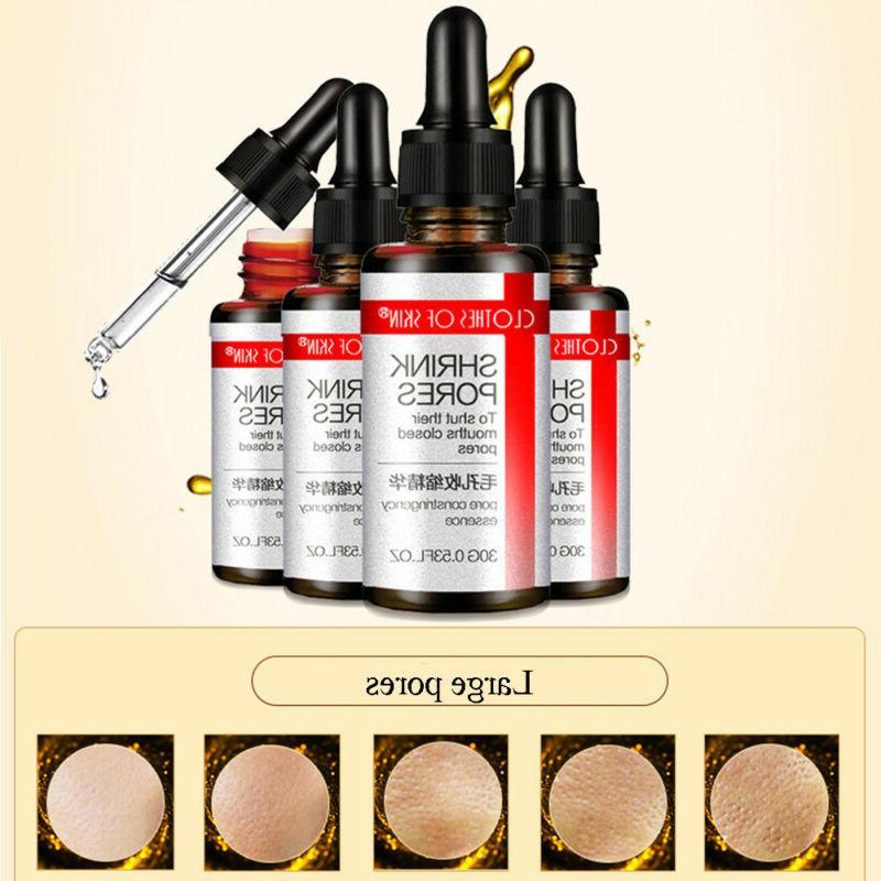 Pore Shrink Serum Sebum Control Facial Oil Balance Large Por