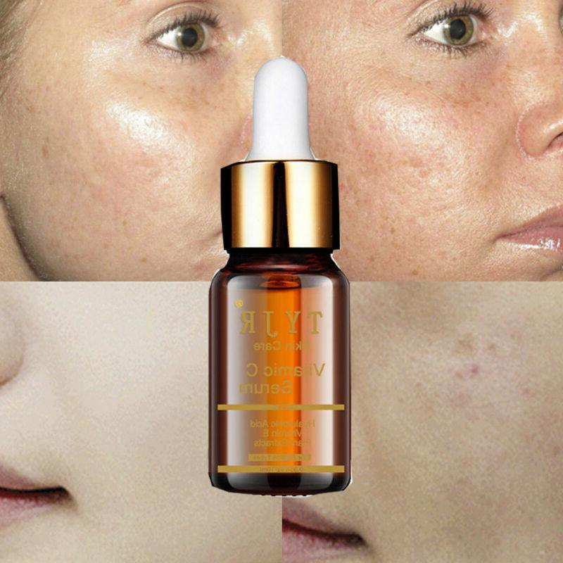 Acid Whithening for Anti Aging 30