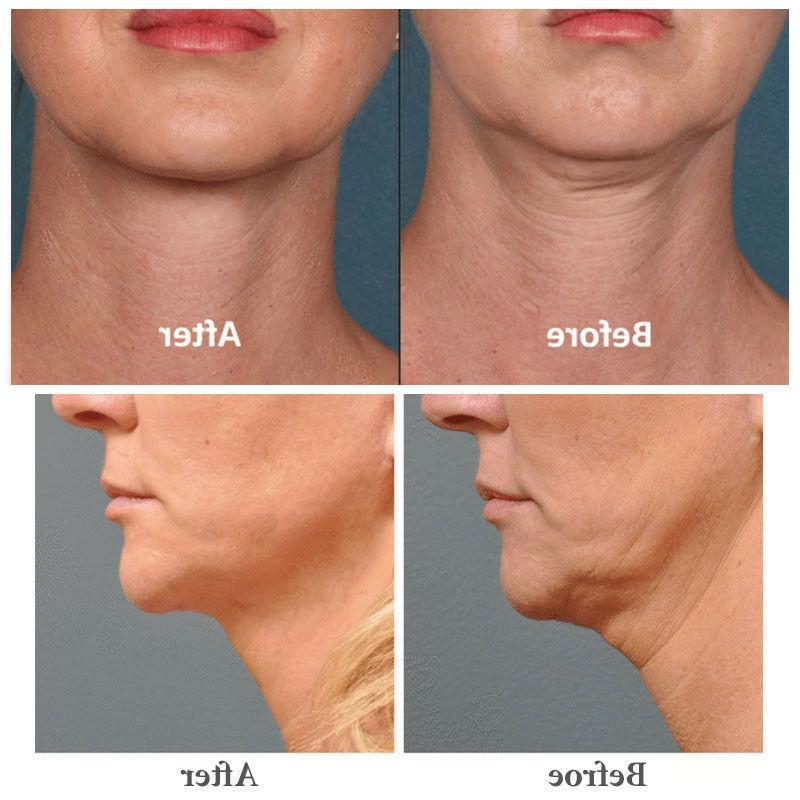 Serum Retinol Face Serum Fine Sensitive Skin