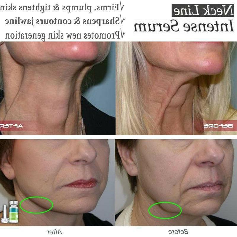 Serum Face Serum Fine Skin