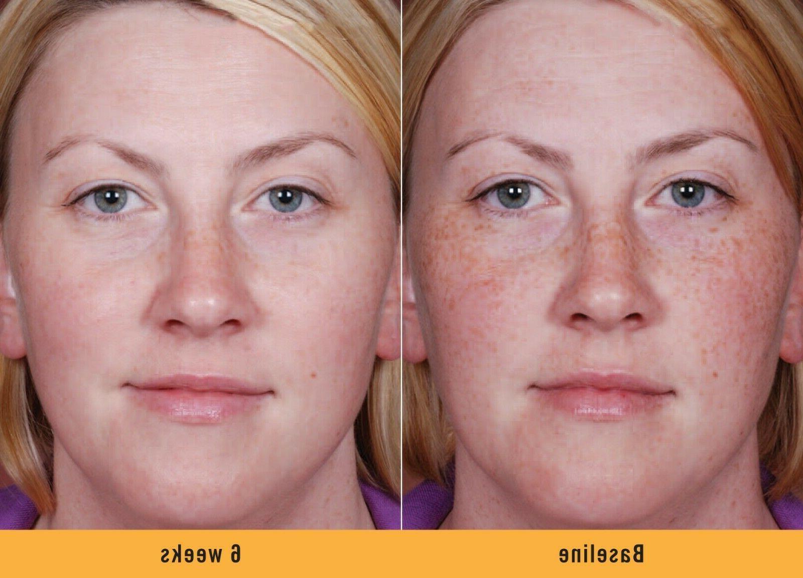 Skin Face Serum Dark