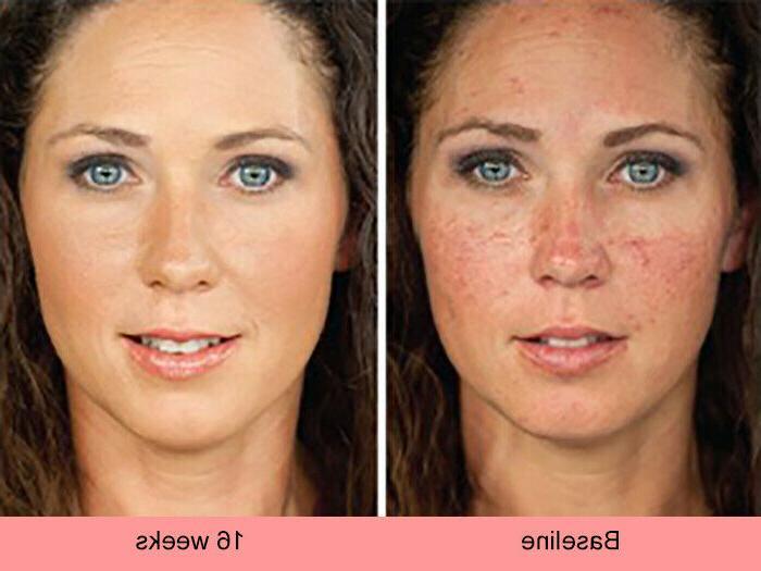 Skin Whitening Lightening Ultra Face Brightening Serum Spot Bleaching