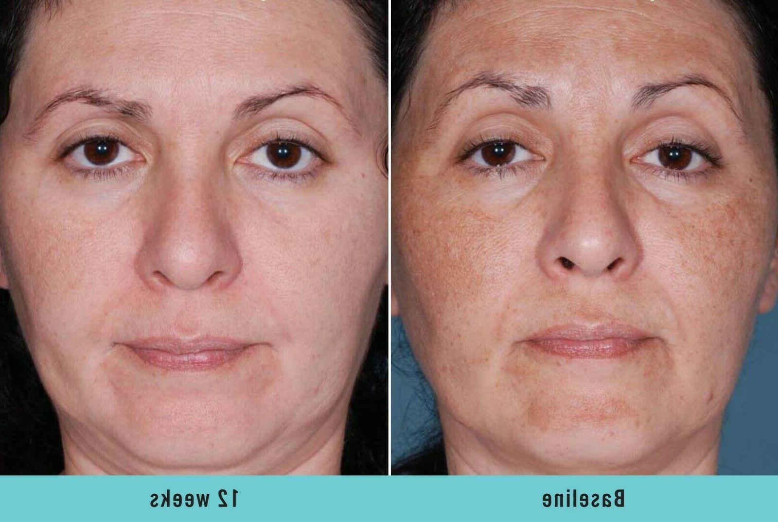 Skin Whitening Lightening Ultra Face Serum Spot
