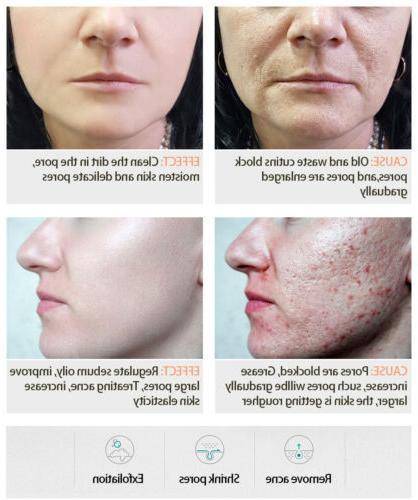VIBRANT Salicylic Acid Shrink Pores Serum Anti-Blackhead