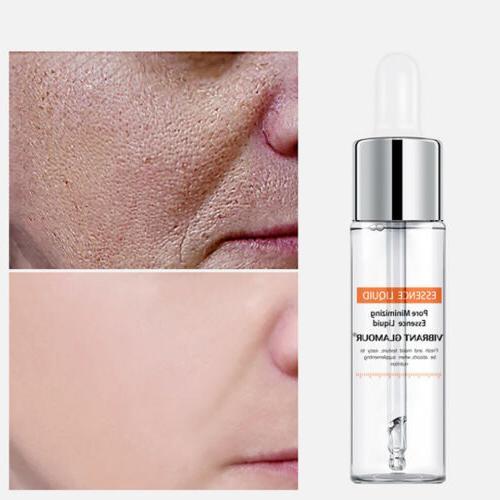 vibrant glamour salicylic acid shrink pores face