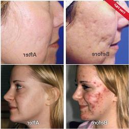 Magic Cream acne spot pox box big large pore raise deep scar