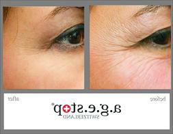 Blackheads Anti aging cream Skin maintenance Skin care by Ag